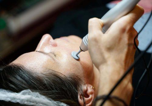 radiofrecuencia facial-min-min