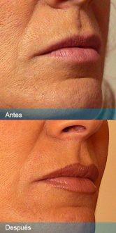 relleno-labios1