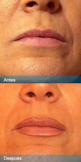 relleno-labios2