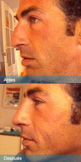relleno-nariz